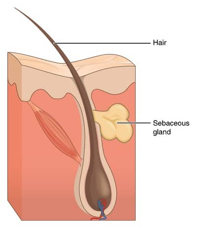 Acne is a blocked or clogged hair follicle