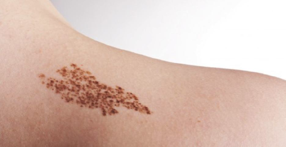 There are many different types of birthmarks. Most can be removed.