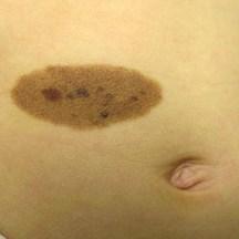 "A ""Melanocytic Nevus"" birthmark"