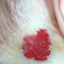 "A ""Telangiectatic Nevus"" birthmark"