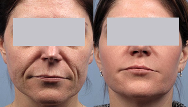 What is a Facelift? Before and After a Nonsurgical Facelift.