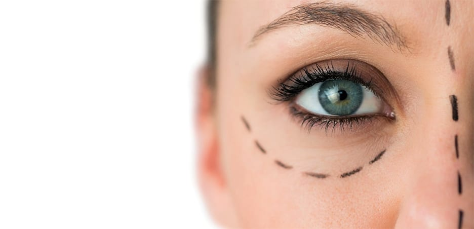 What is A Facelift? You have 2 options… The surgical facelift and the nonsurgical facelift procedure. Which is better?