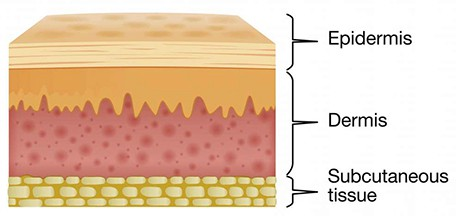 Your skin is comprised of 2 main layers, the dermis and the epidermis