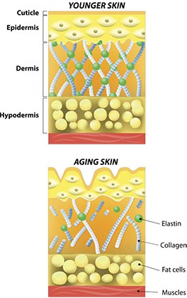 As we age our collagen becomes damaged. Fibers deteriorate, cross-bridges break, bundles become disorganized and loose.