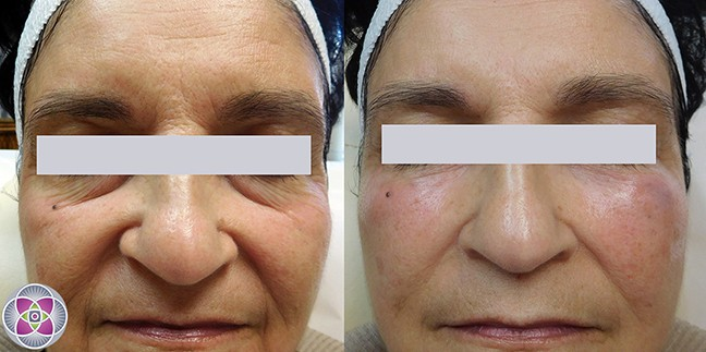 Before and after dermal fillers under the eyes