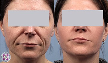 Laser treatments stimulate the generation of your own natural collagen