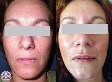 Laser treatments can lift, tone and tighten your skin