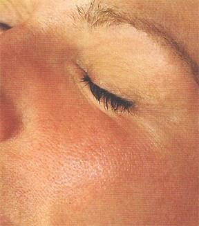 Thick Skin - Bree Walker