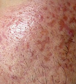 Acne scar on the face can be successfully treated