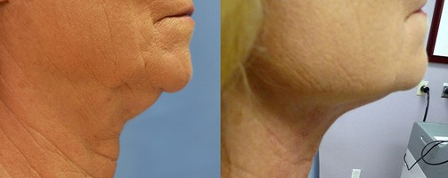 Before and After Bipolar Radio Frequency treatment to reduce the appearance of jowls.
