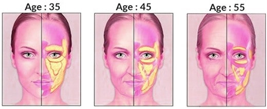 One of the reasons that jowls develop is due to loss of subcutaneous fat. As we age we begin to lose some of this fat.