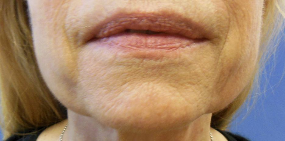 First you must understand what causes jowls in order to eliminate them