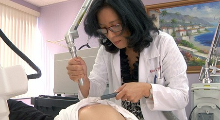 Laser stretch mark removal on the thigh using an Erbium laser