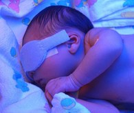 Ultraviolet light therapy can be effective in treating baby eczema