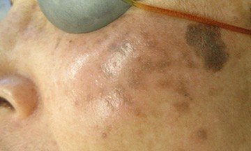 Post Inflammatory Hyperpigmentation (PIH) is different from melasma.