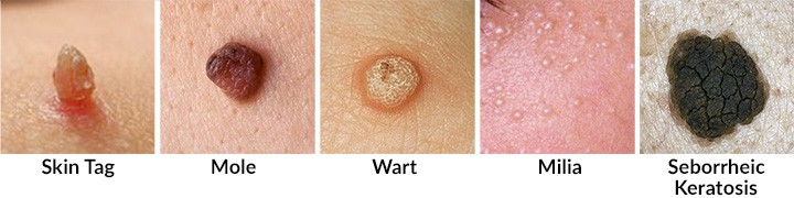 The difference between a skin tag and a mole, wart, milia, and Seborrheic Keratosis
