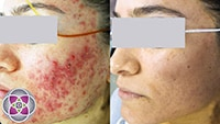 The results of laser acne treatments combined with photodynamic therapy are spectacular