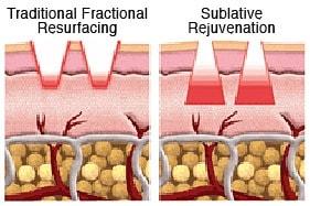 Fractionated bipolar RF technology