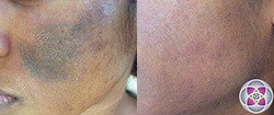 Hyperpigmentation is targeted