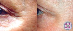 Wrinkles are reduced