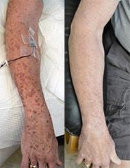 Scot's disseminated superficial actinic porokeratosis began to heal