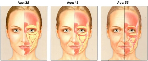 As we age our faces lose volume due to loss of subcutaneous fat under the skin