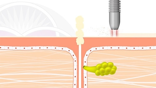 Taking off the uppermost dead layer of skin will help the skin to purge when the sebaceous glands shrink back down
