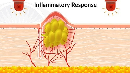 The immune inflammatory responses cause all these blood vessels to grow in to bring with them all the immune cells
