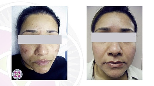 Our entire methodology is to remind the skin of your face to do what is is already doing on the rest of your body