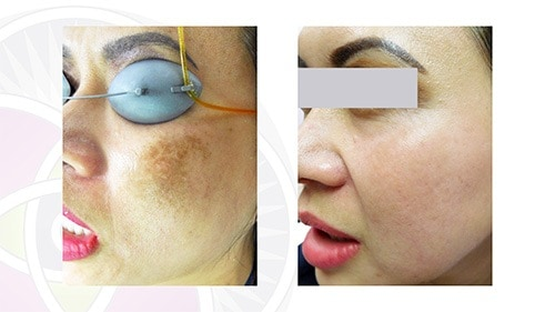 After multiple treatments your skin will be back to its baseline color