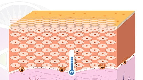 By reseting the melanocyte back to 72 the melasma does not come back