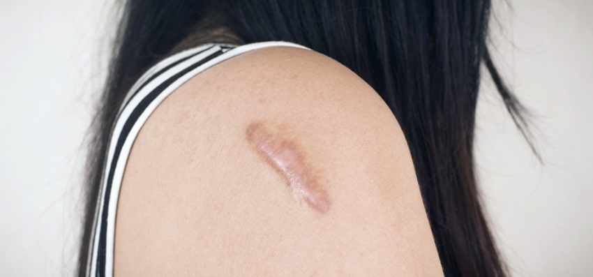 At some point in our life each and every one of us has had a scar.