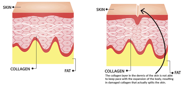 How stretch mark scars form.