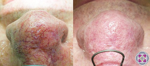 "Laser spider vein removal has overtaken sclerotherapy as the ""Gold Standard"" of facial spider vein removal. Pictured above is a before and after photo immediately following laser treatment."