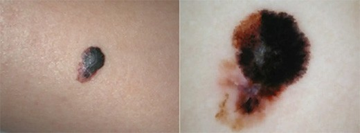 If you have a freckle of an unusual shape or size it's time to get it checked out to make sure it's not skin cancer.
