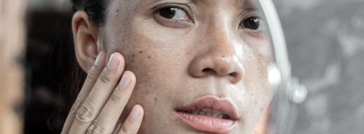Freckles can be a cool natural enhancement to one's looks, but they can also be a huge drawback for one's self-esteem.