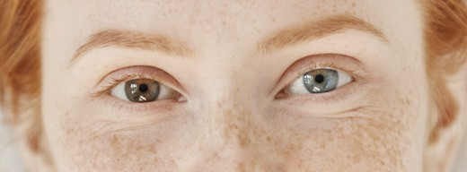 Freckles are associated with the Melanocortin-1-receptor, variants of which are also associated with fair skin and red hair.