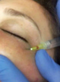 Sclerotherapy being performed beneath the eyes.
