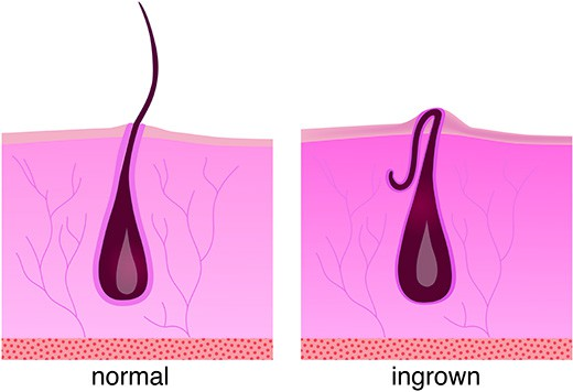 Normal hair growth on the left. What an ingrown hair looks like on the right.