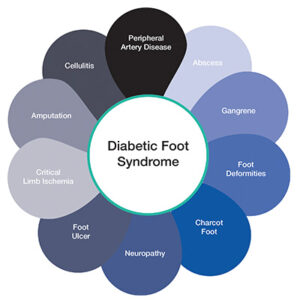 Diabetic Foot Syndrome