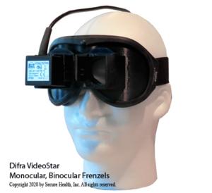 Difra Video Frenzel Goggles, videonystagmography