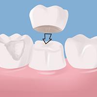 My Dentist Brookline Crowns