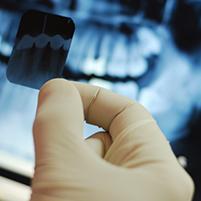 My Dentist Brookline Digital X-rays