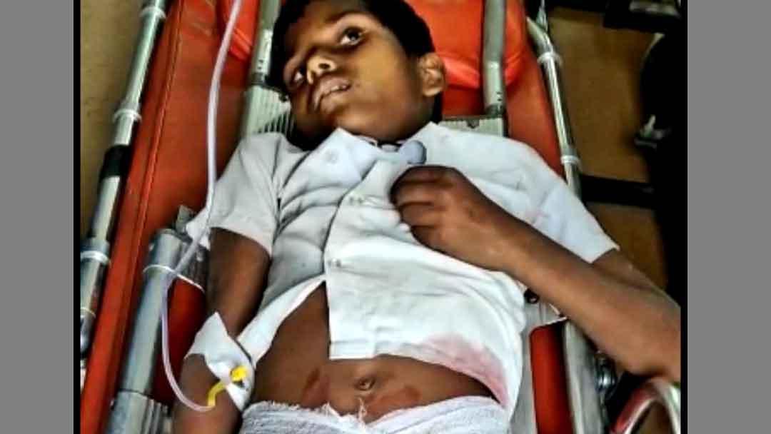 तेज रफ्तार अज्ञात वाहन की टक्कर से स्कूल का छात्र घायल