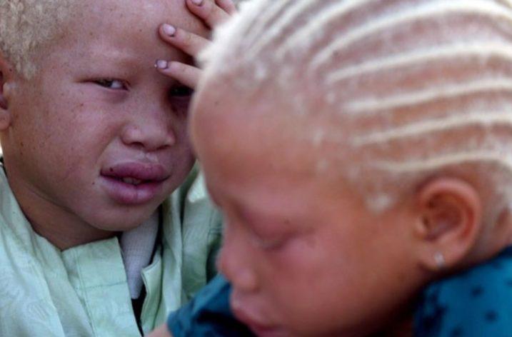 Ritual Murder In Africa