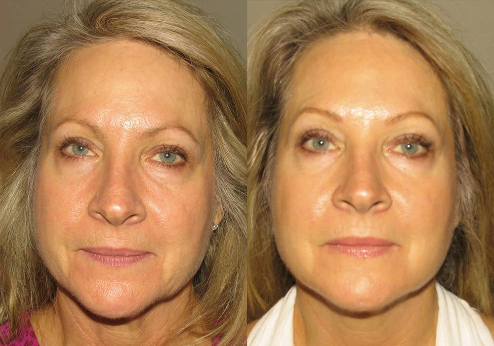 Dermal Fillers Photo Patient 1   Guyette Facial & Oral Surgery, Scottsdale, AZ