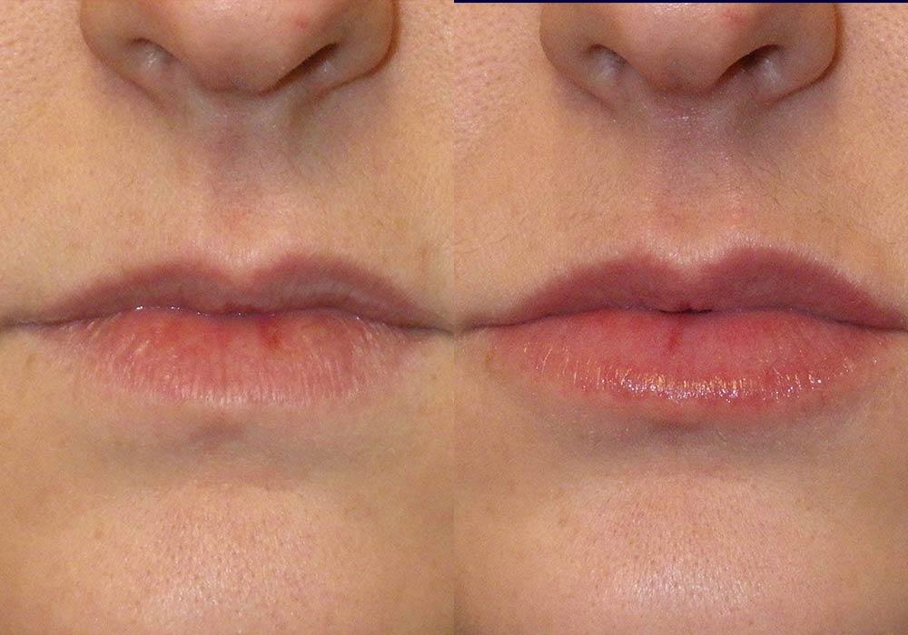 Dermal Fillers Photo Patient 2   Guyette Facial & Oral Surgery, Scottsdale, AZ