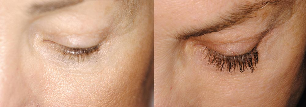 Latisse Photo Patient 1 | Guyette Facial & Oral Surgery, Scottsdale, AZ