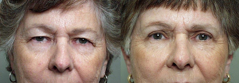 Eyelid Patient 12   Guyette Facial & Oral Surgery, Scottsdale, AZ