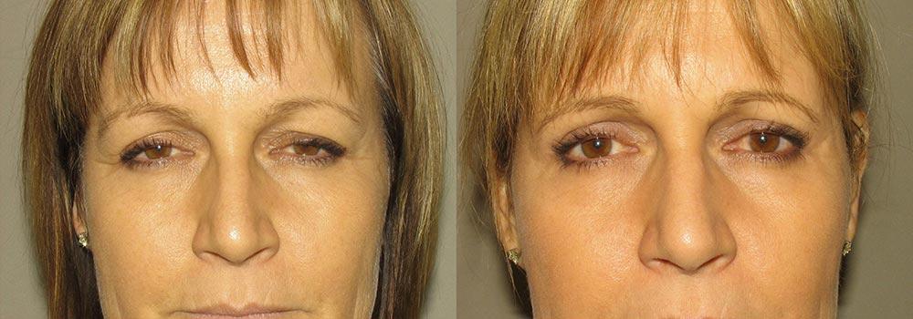 Eyelid Patient 13   Guyette Facial & Oral Surgery, Scottsdale, AZ